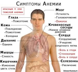 anemiya